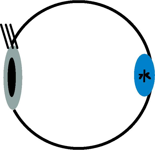 目玉 中心性漿液性網脈絡膜症